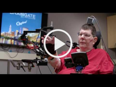 Man with quadriplegia employs injury bridging technologies to move again - just by thinking​