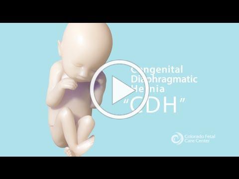 CDH Part 1: What is Congenital Diaphragmatic Hernia?