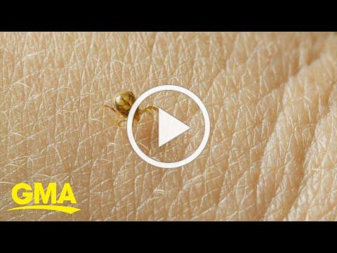 5 common but dangerous bugs to avoid when outdoors this summer   GMA