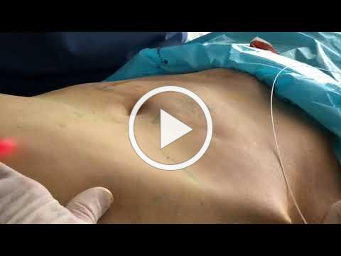 Laser Liposuction with Dr. Hopping.