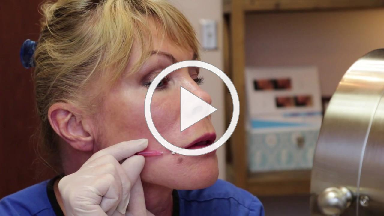 Demonstration of Absorbable Threads To Define Lips & Lift Mouth Corners