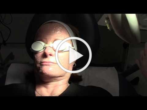 IPL Laser & Vascular Laser Treatment by Dr.Jennifer Trent,MD