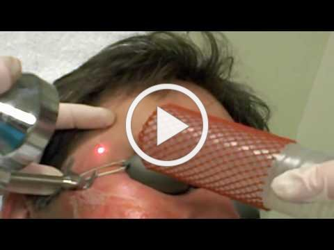 Skinspirations' Profractional Laser Treatment Of Scars