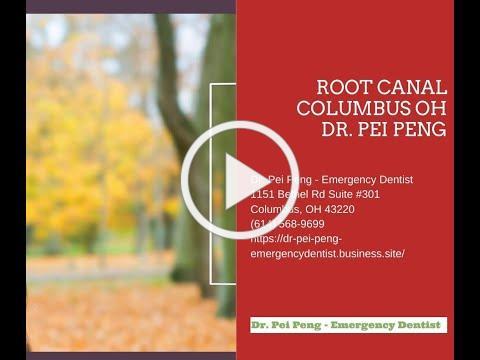 Root Canal Columbus OH - Dr. Pei Peng