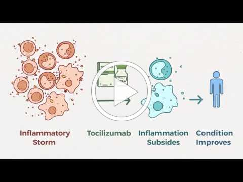Tocilizumab Treatment of COVID 19