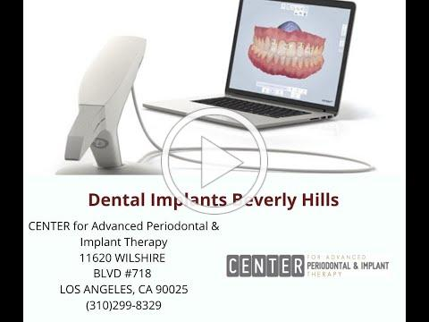 Dental Implants Beverly Hills : Center for Advanced Periodontal & Implant Therapy