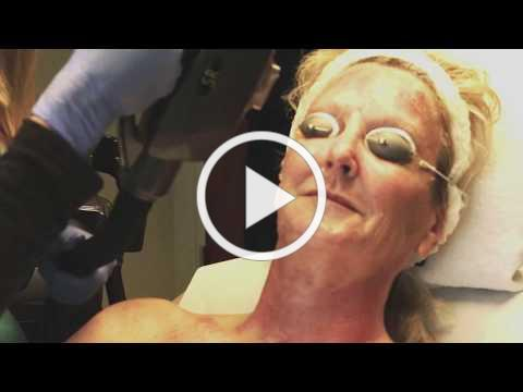 An IPL Photofacial Treatment of the Face, Neck & Chest at Skinspirations in Clearwater, Florida