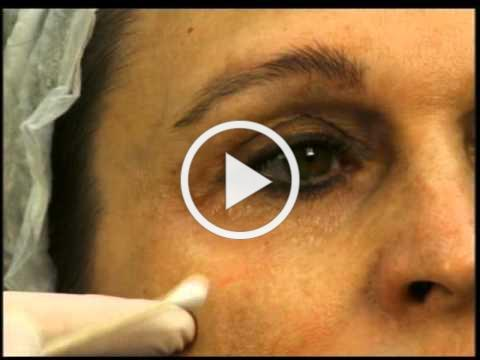 Dr. Elliott Demonstrates Correcting Tear Troughs & Eye Depressions With Dermal Fillers