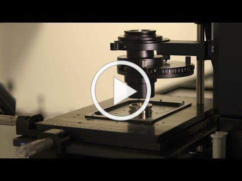 3D Super-Resolution Imaging Gives Insight on Alzheimer's Disease