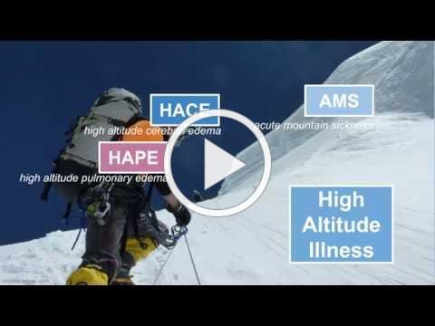 High Altitude Illness
