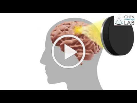 Focused delivery for brain cancer   Washington University