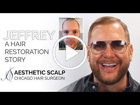 Jeffrey: A Hair Restoration Story