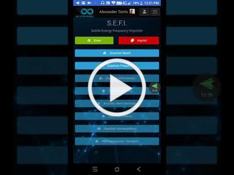 AO Scan Mobile Basic Setup Walk through
