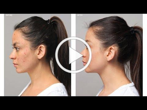 Vanessa's Acne Advanced Story   Before & After   Eminence Organics
