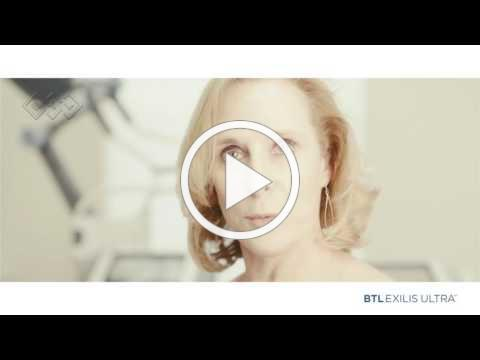 BTL Exilis Ultra - Patient Testimonial - Mary