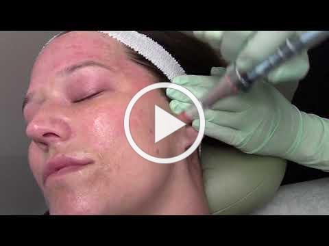 Microneedling at Dermatology Clinic, P.C.