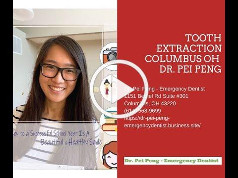 Tooth Extraction Columbus OH - Dr. Pei Peng