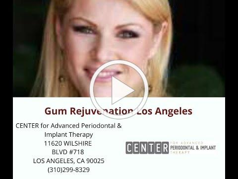 Gum Rejuvenation Los Angeles : Center for Advanced Periodontal & Implant Therapy